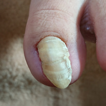 巻爪の手術後でも続いている巻爪の悩みと爪の長さの記事に添付されている画像