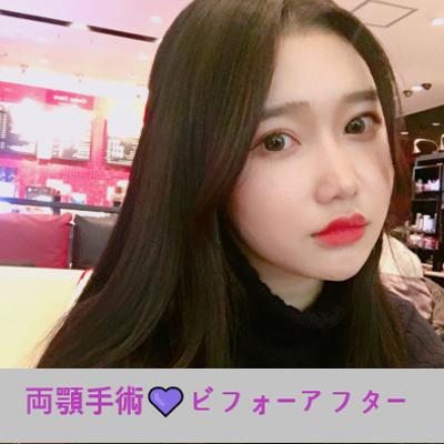 ★両顎手術★韓国人モニターモデルのビフォーアフター写真の記事に添付されている画像
