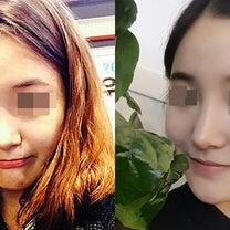 韓国整形human整形外科・鼻の手術リアルセルカの記事に添付されている画像