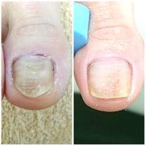 ケアを続けることで変化してきた足の爪の記事に添付されている画像