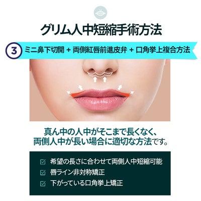 韓国美容整形ー人中短縮+外側人中+口角挙上の記事に添付されている画像