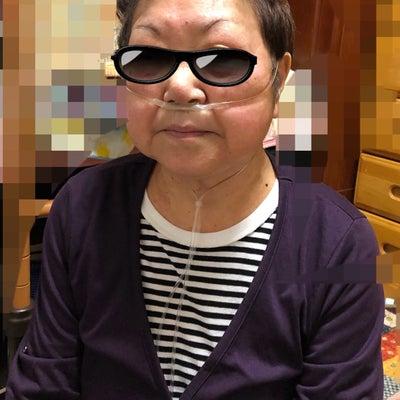 母の発疹(モノクロで発疹の写真貼ってます、苦手な人はスルーして下さい)の記事に添付されている画像