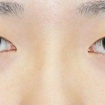 20代女性「目頭切開+目尻切開」手術後1ヶ月目の変化をご紹介いたします。の記事に添付されている画像
