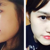 id美容外科専門医が記録したモニターモデルの手術日記!の記事に添付されている画像