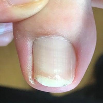 痛かったから、カッターで爪の角を削ってましたの記事に添付されている画像