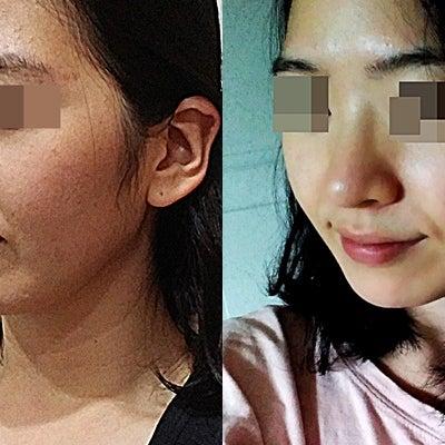 韓国整形コノピ美容外科・症例写真&手術後のリアル話の記事に添付されている画像