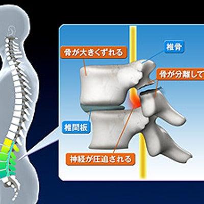 腰椎分離症の記事に添付されている画像
