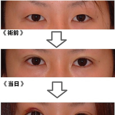 埋没二重を検討されている方必見!!二重の手術はデザインが重要!!~大阪・心斎橋・の記事に添付されている画像