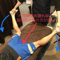 【プレシーズンに多いケガ】外閉鎖筋(ガイヘイサキン)肉離れ の予防の記事に添付されている画像