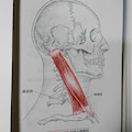 #首の痛みの画像