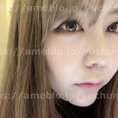 鼻整形&人中短縮2週間目!!整形の後遺症?の記事に添付されている画像