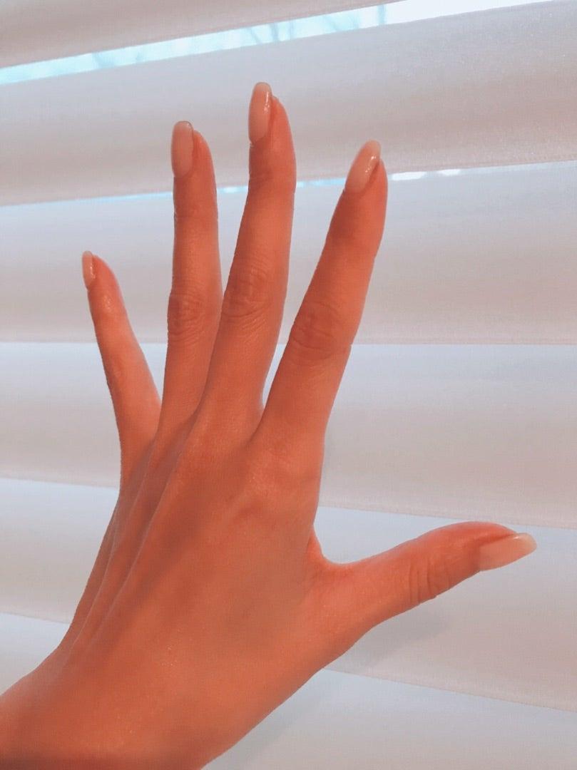 今朝の私の手です。