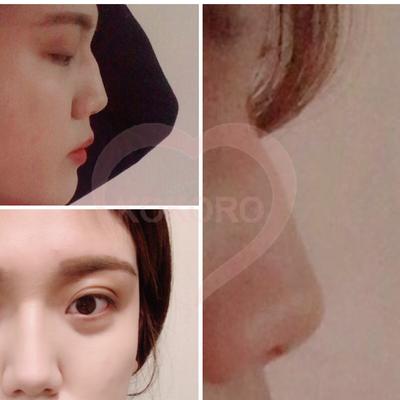 チャイ整形外科:目、ワシ鼻矯正、脂肪移植手術をされた患者様のリアルストーリーの記事に添付されている画像