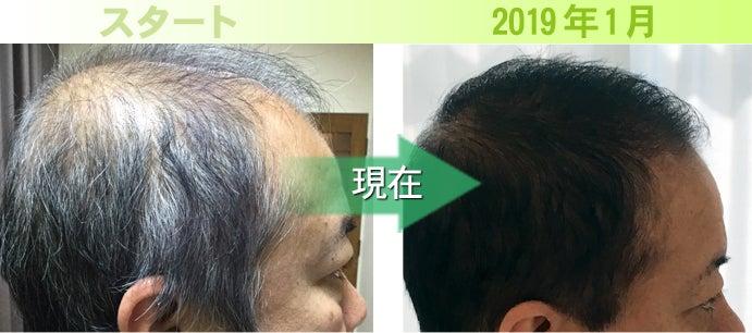 熊本タレント発毛