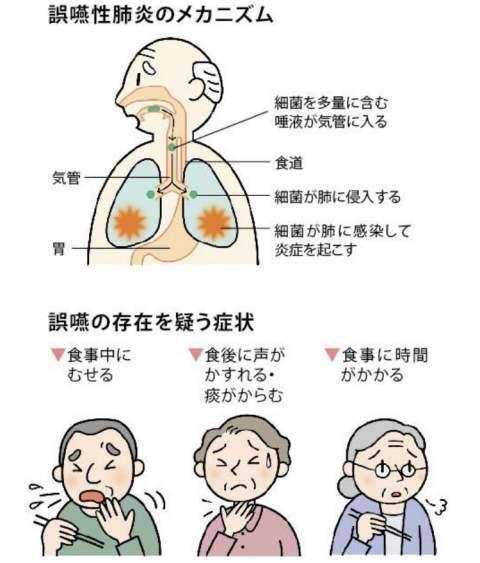口腔 ケア 誤 嚥 性 肺炎