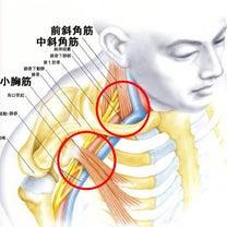 腕のシビれ 胸郭出口症候群の記事に添付されている画像