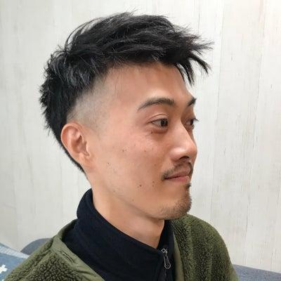 頭皮のフケ、カユミ対策の記事に添付されている画像