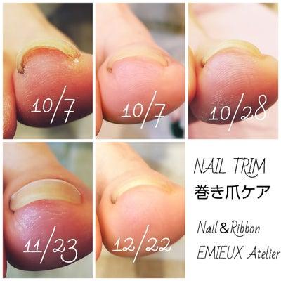 NAIL TRIM ネイルトリム巻き爪ケア 3ヶ月経過の記事に添付されている画像