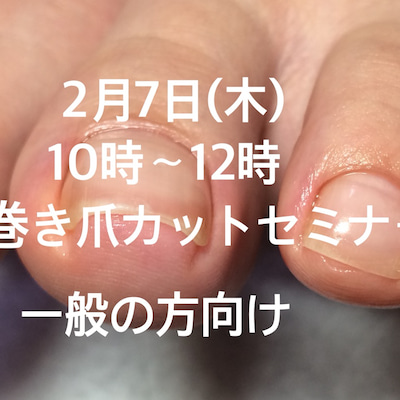 巻き爪カットセミナー開催します!の記事に添付されている画像