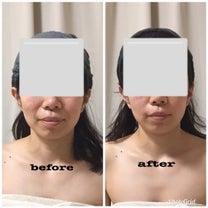 【小顔矯正リフトアップコース]ビフォーアフターの記事に添付されている画像