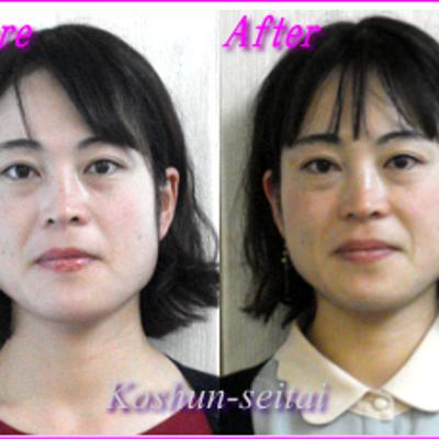 顔の歪みとフェイスラインのお悩み改善中の記事に添付されている画像