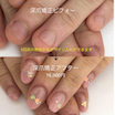 深爪矯正 1回目の施術でデザイン入れ、カラー入れ可能になりました。デザインの幅も広がりました。