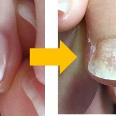 親指以外の指の「巻き爪」「陥入爪」にも対応できます♪の記事に添付されている画像