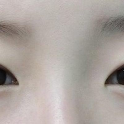 できる限り幅を広げてみた眼瞼下垂もある目への二重手術◎ LDbSK®の記事に添付されている画像