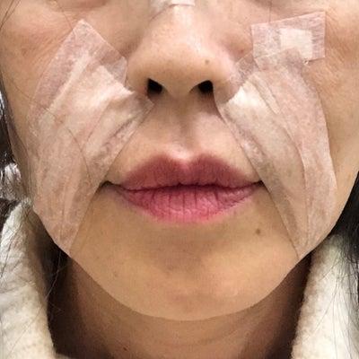 江南(カンナム) 陳整形外科 ほうれい線手術 その③ 自己真皮再生術の記事に添付されている画像