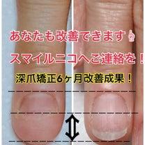 深爪矯正6ヶ月後の改善例の記事に添付されている画像