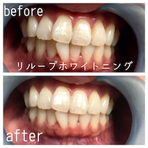 歯医者さんのホワイトニングからのセルフホワイトニング~お客様⑥~の記事に添付されている画像