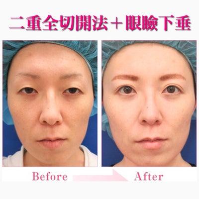 二重全切開法と眼瞼下垂治療の記事に添付されている画像