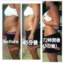楽チン ハーブ痩身♡♡の記事に添付されている画像