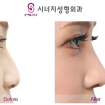 シナジー整形外科★団子鼻症例写真の記事に添付されている画像