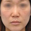 #鼻の手術の画像