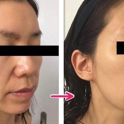 顔のシミ。他院レーザー後に、Qスイッチヤグレーザーの記事に添付されている画像