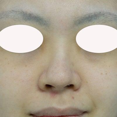 『鼻複合手術』で目立たない鼻をめざすの記事に添付されている画像