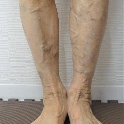 治療後1カ月経過 症例写真(60代・女性)150の記事に添付されている画像