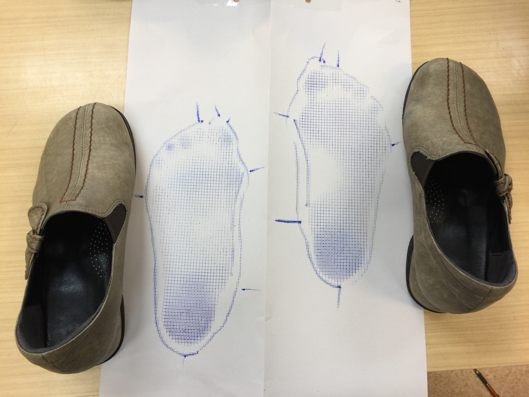 ご存知でしたか?靴が変形していると言う事は足も変形しています