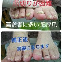 高齢者の肥厚爪の記事に添付されている画像