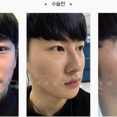 トップクラス美容外科で手術を受けられた方のリアルストーリーをご紹介♪の記事に添付されている画像