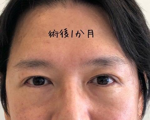 眼瞼下垂 失敗 和田アキ子
