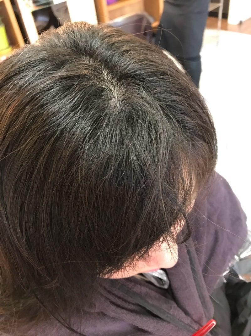 縮毛矯正 髪質改善 くせ うねり