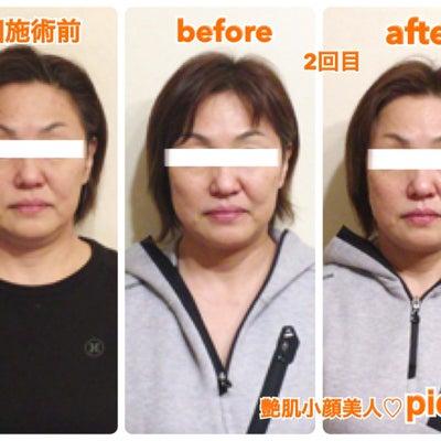 お顔のたるみはピッカの小顔矯正にお任せ下さい♪の記事に添付されている画像