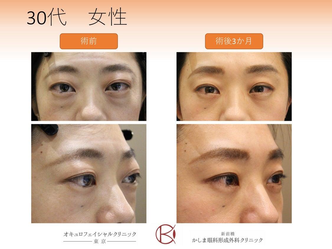 減圧手術前後の表情の変化の記事より