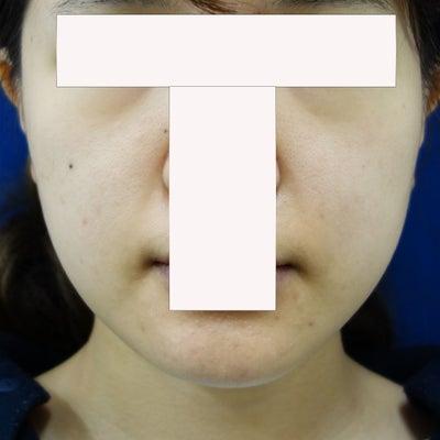 小顔治療『エラボトックス』と『脂肪溶解注射』の最強コンビの記事に添付されている画像