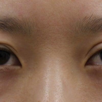 二重修正 幅狭く~腱膜固定+吊り上げ 1週間 左目のみ手術してますの記事に添付されている画像