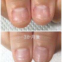 【深爪改善】お爪の成長記録・ケアとジェルを使い分けながらの記事に添付されている画像