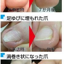 ペディグラス巻き爪補正スクールのご案内の記事に添付されている画像