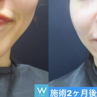 今日もご紹介させて下さい♡ボトックス注射~大阪・心斎橋・WCLINIC~の記事に添付されている画像